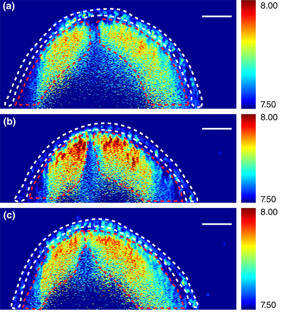 Brillouin images of neural tube cross sections at different levels within an embryo.DOI: 10.1002/bdr2.1389