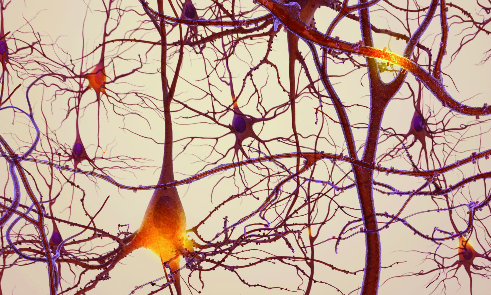 Neurons in the brain. Credit: National Institute on Aging/National Institutes of Health