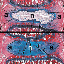 From the Orthopaedic Mechanobiology Lab. Top: a histology section illustrating the normal composition and microarchitecture of the intervertebral disc from the spine of a rat.  The lab uses rats as a biological and biomechanical analogue to human discs for their experiments. Bottom: a disc that has been exposed to mechanical overloading, which induces degenerative changes that resemble what happens in humans during aging. It is one of the key pieces of evidence that the mechanical stresses that put on the spine every day contributes to the acceleration of degenerative processes in intervertebral discs.