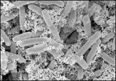 Scanning electron microscope image of the magnetic nanofactories attached to targeted E. coli cells.