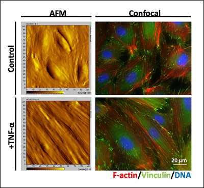 Above: This image shows both atomic force microscopy (AFM, left side) contact images and confocal images (right) of endothelial cell monolayers on a stiff surface, under both control and TNF-alpha-activated conditions. TNF-alpha is a treatment that induces the inflammatory response of endothelial cells and allows immune cells to attach to the surface. The AFM image allows Stroka and her colleagues to observe the topography of the endothelial cell monolayer, and at the same time take force measurements with the AFM to quantify the stiffness of the cells. The confocal image allows Stroka to observe the major sites of force transduction, i.e. the F-actin cytoskeletal network (red) and the focal adhesions (green). Cell nuclei are shown in blue.