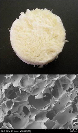 Images of Hyland's polysaccharide scaffolds made from chitosan, alginate and chondroitin. Above: A photo of a dry scaffold. Below: A scanning electron microscopy (SEM) image of the material showing its structure.